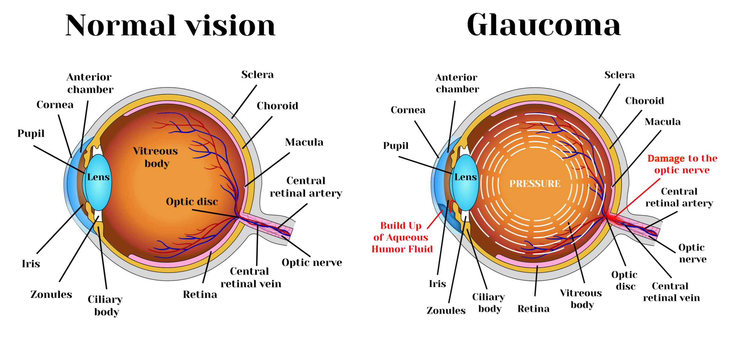 What is Glaucoma? Learn about Glaucoma | Glaucoma Resources